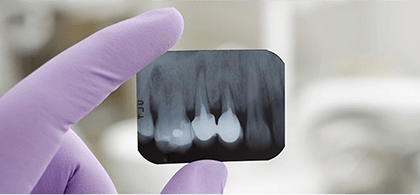 歯のレントゲン写真