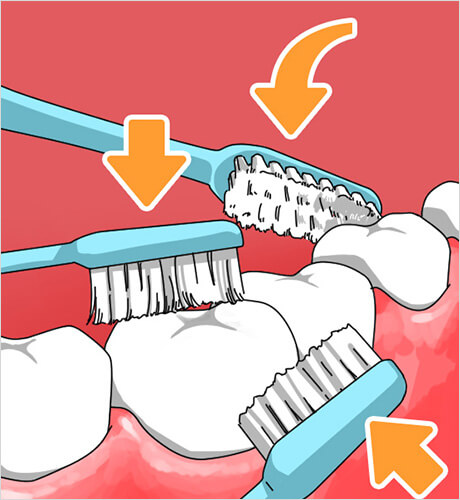 よしむらファミリー歯科の磨き方のイメージポイント2