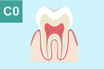 CO(シーオー):虫歯になりかけの歯の図