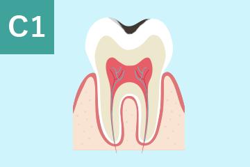C1:歯の表面のむし歯の図