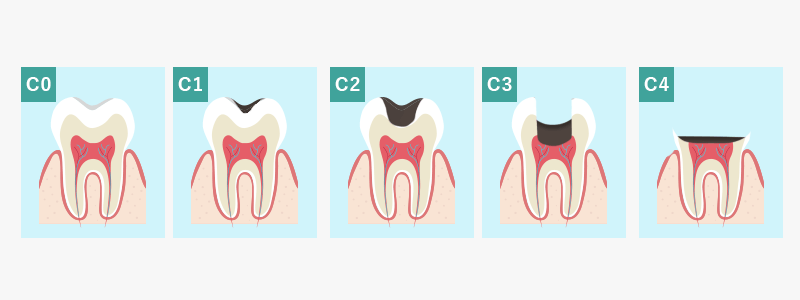 虫歯の進行の図 C0 C1 C2 C3 C4