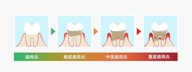 歯周病の進行の図 歯肉炎 軽度歯周炎 中度歯周炎 重度歯周炎