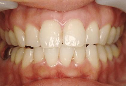 よしむらファミリー歯科の歯のクリーニング後の写真