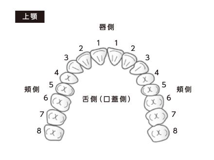 よしむらファミリー歯科 ヤニ取り上顎の図