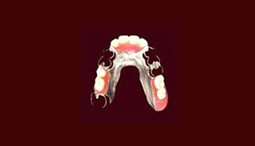 コバルトクロム床義歯の入れ歯の写真