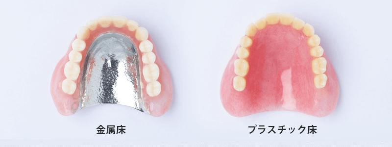 入れ歯の種類 金属床 プラスチック床