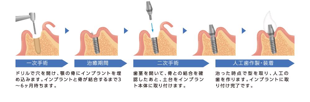 インプラント治療の工程の図 一時手術 治癒期間 二次手術 人口