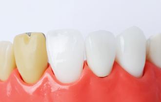 前歯のかぶせもの治療